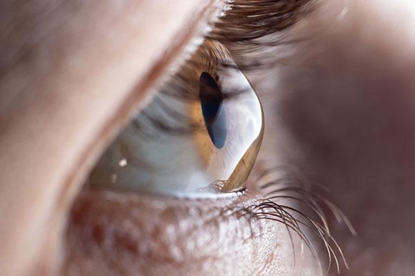 keratoconus eye